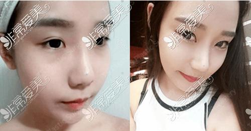 韩国TS整形外科鼻修复案例