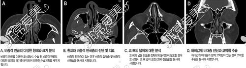韩国VG百利酷整形外科鼻修复技术