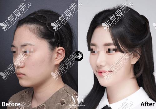 韩国VG百利酷整形外科鼻修复案例