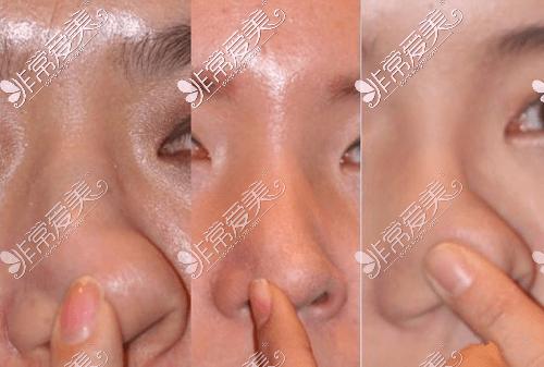 韩国清潭first整形外科鼻修复案例