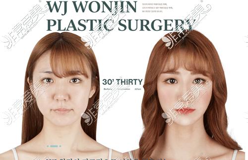 韩国原辰整形外科面部提升案例