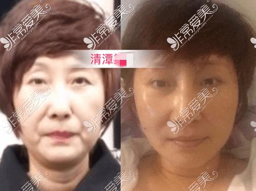 韩国清潭first整形外科面部提升案例