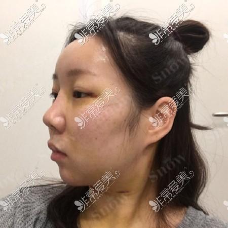 面部吸脂和面部脂肪填充一起做6天效果