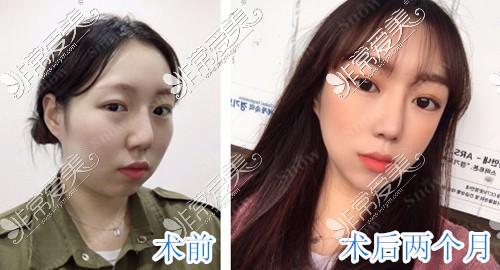 韩国SNOW医院面部吸脂和面部脂肪填充一起做前后对?比图