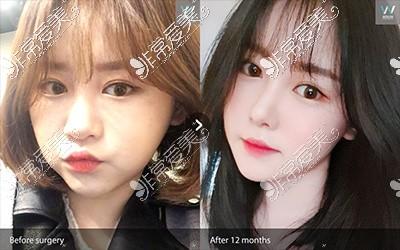 韩国原辰整形外科轮廓案例
