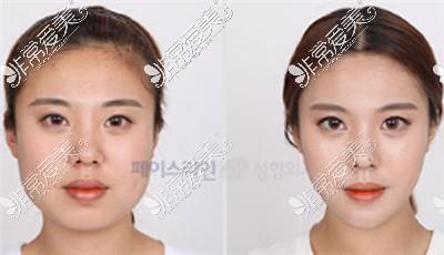 韩国佰诺佰琪整形外科轮廓对比