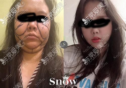 韩国SNOW整形医院面部吸脂案例照片