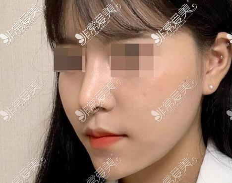 韩国优雅人自体肋骨隆鼻一个月后效果