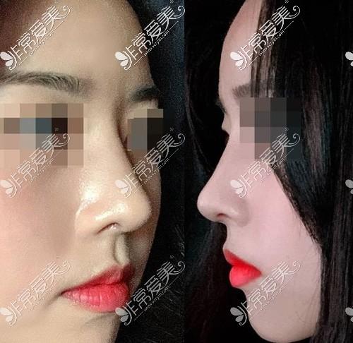 韩国优雅人鼻综合手术后半个月状态