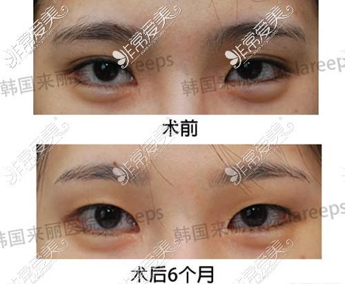 韩国来丽整形医院双眼皮变单案例