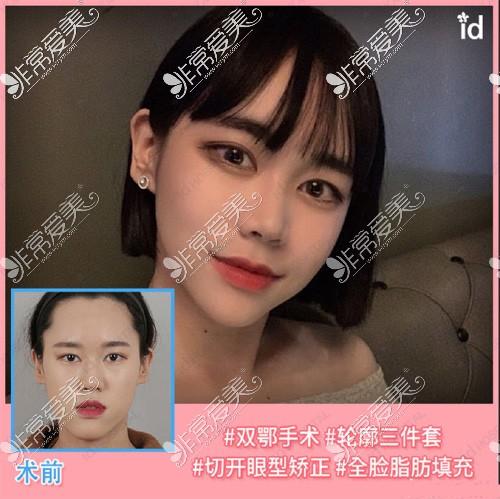 韩国ID医院双鄂手术案例