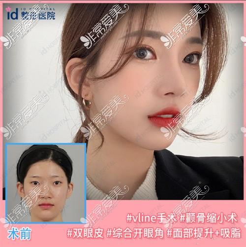 韩国ID医院眼?综合案例