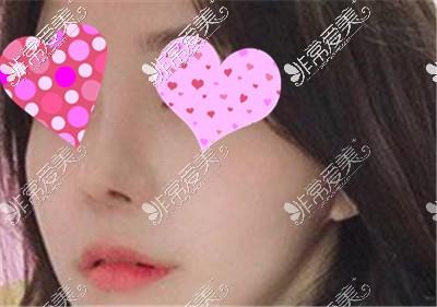 韩国隆鼻案例