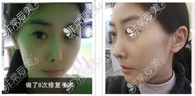 韩国431整形外科隆鼻?案例?