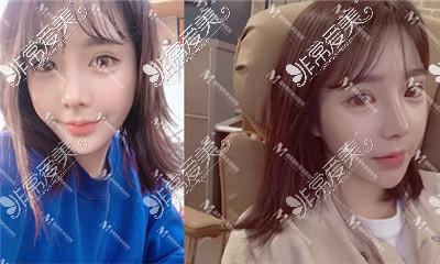 韩国迪美整形外科隆鼻案例