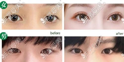 韩国娜娜整形眼部手术案例