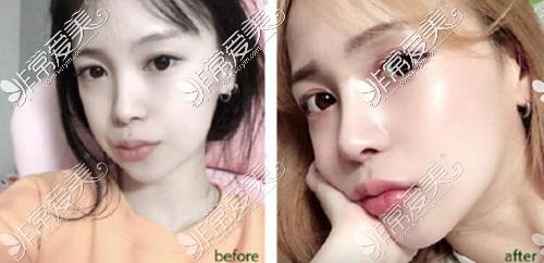 韩国娜娜整形隆鼻案例图