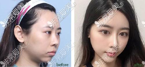 韩国娜娜整形外科面部整形案例