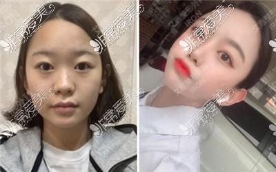 韩国双眼皮整形案?例