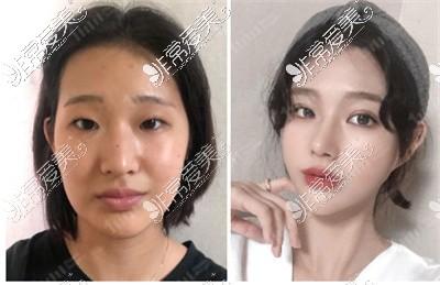 韩国1mm整形外科双眼皮案例