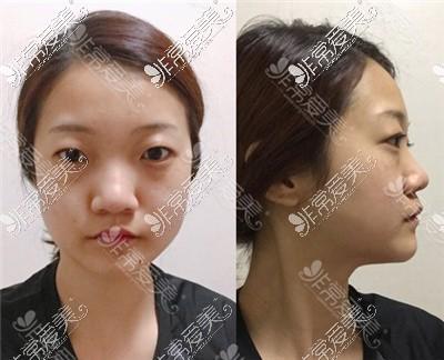 韩国艾恩整形外科整形前
