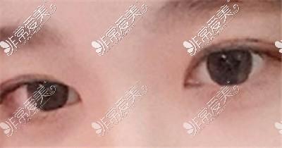 韩国大眼睛整形外科术后