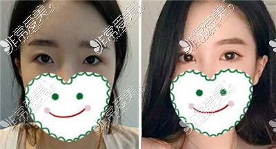 韩国PR整形外科双眼皮案例
