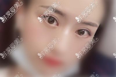 韩国眼综合案例图