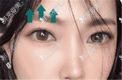 韩国原辰整形外科的朴章佑院长眼综合案例