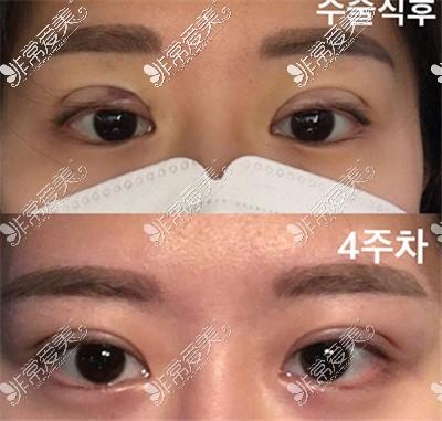 韩国1mm整形外科都彦祿院长眼综合案例
