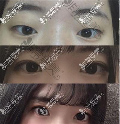 韩国初雪整形外科眼综合案例