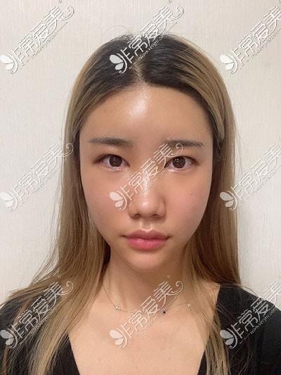 韩国全脸脂肪填充案例