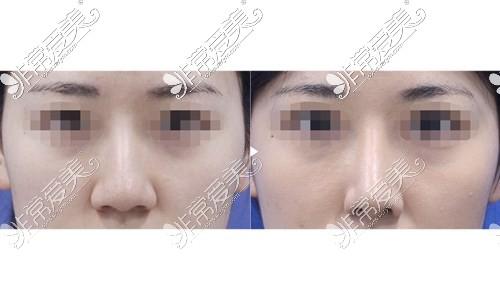 韩国可来熙鼻头鼻翼缩小术案例