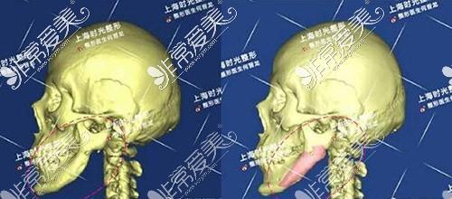 上海时光下颌角失败修复