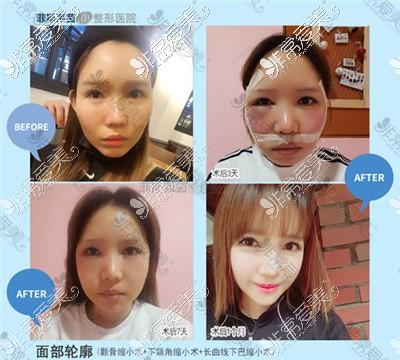 韩国faceline整形外科李真秀院长面部轮廓效果图