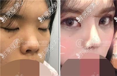 韩国可来熙整形外科福鼻改善