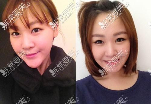 韩国原辰整形外科轮廓手术案例