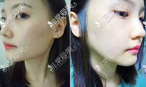 韩国伍人整形外科下颌角手术特点对比