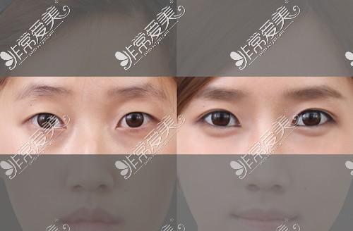 韩国原辰整形外科双眼皮手术案例展示