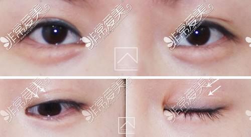 韩国Misoline整形外科双眼皮手术效果展示