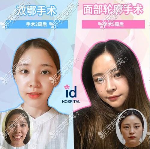 韩国ID医院案官网案例