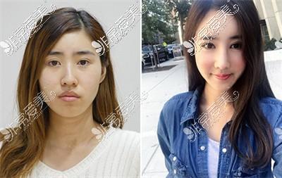 韩国轮廓手术前后对比
