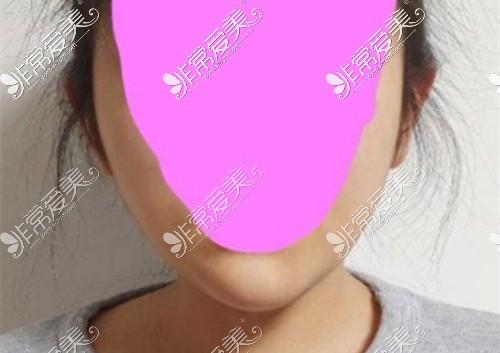 韩国Qline女性医院面部吸脂后