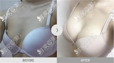 韩国麦恩整形外科隆胸对比