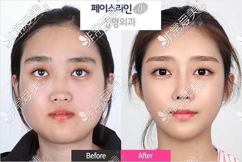 韩国菲斯莱茵医院下颌角手术案例