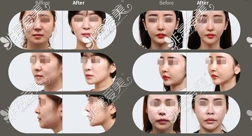 韩国原辰整形埋线除皱案例对比