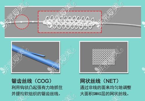 韩国马博尔整形外科埋线材料特点展示