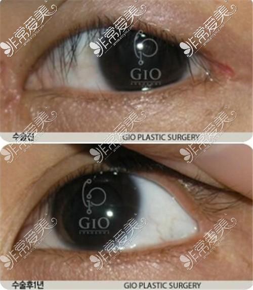 韩国GIO整形外科眼角修复案例