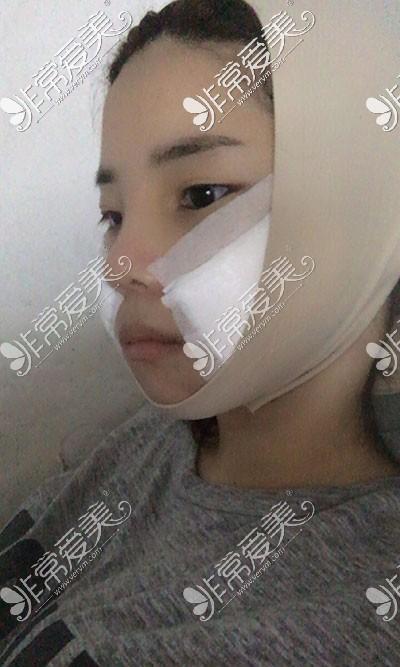 面部吸脂恢复图片