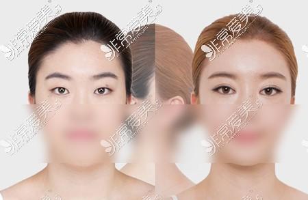 双眼皮手术前后对比效果